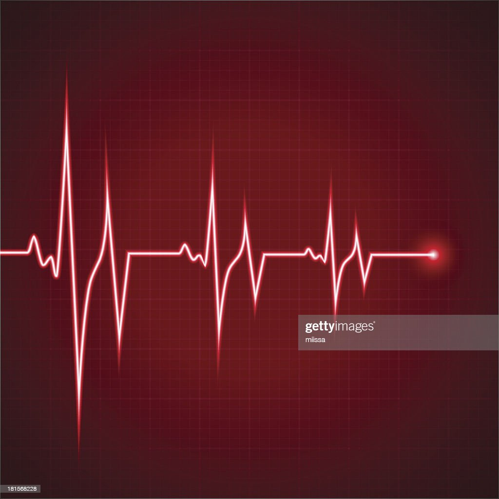 In this Picture we can see the rhythm of the heart beat