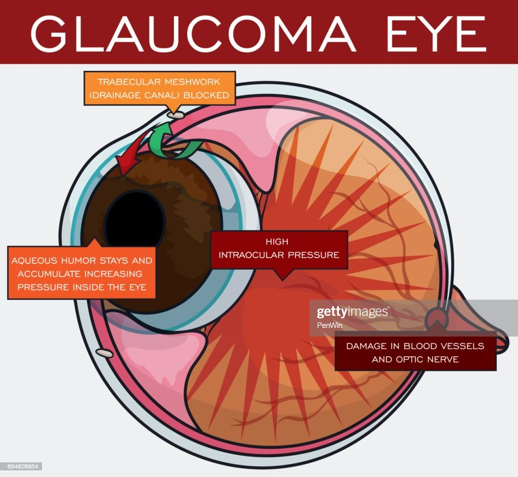 Information about Glaucoma and its Evolution in the Eye