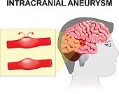 Intracranial aneurysm. cerebral or brain aneurysm.
