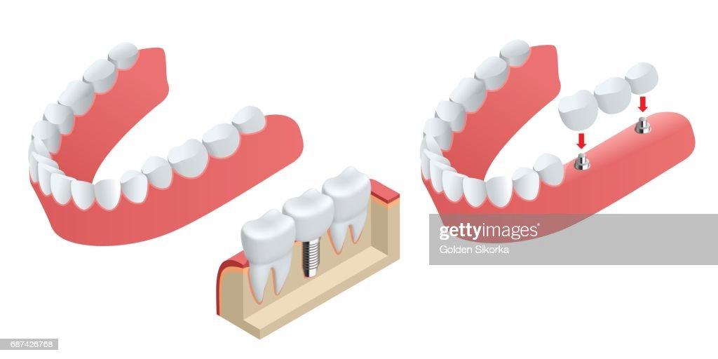 Isometrische Menschlichen Zahnimplantat Dental Konzept Menschliche ...