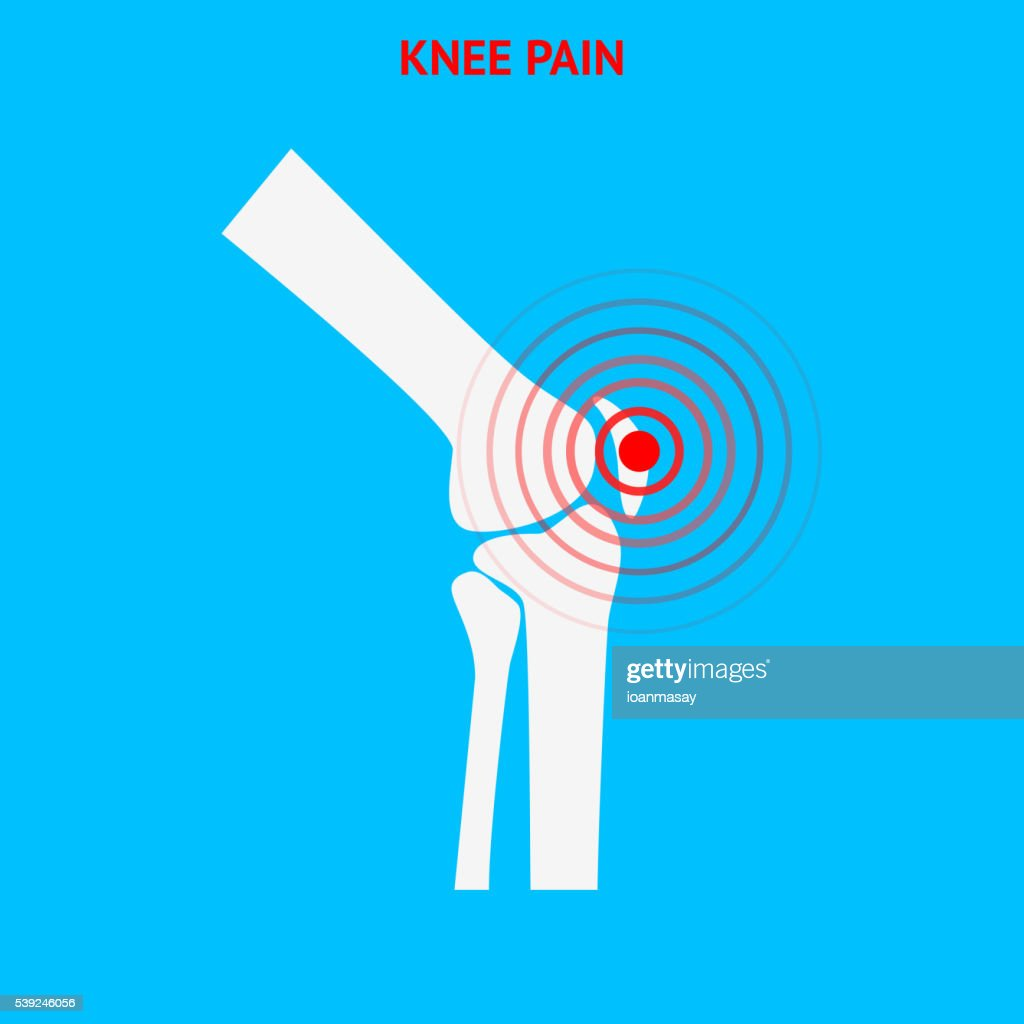 Knee pain. Knee pain icon isolated on white background.