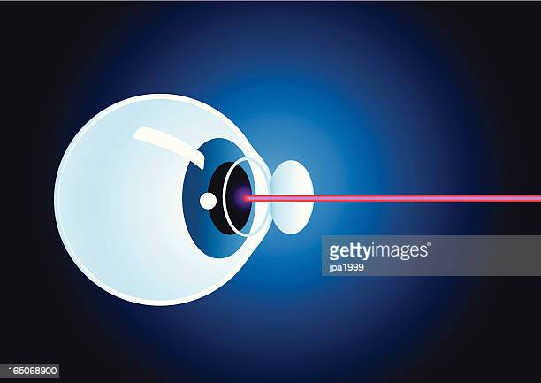 laser eye surgery - diabetic retinopathy stock illustrations