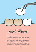 Layout Putting new veneer on discolored tooth illustration vector on blue background. Dental concept.