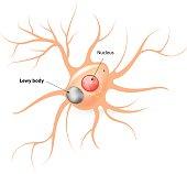Lewy body. Parkinson's disease and Alzheimer's disease