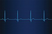 Lifeline in an electrocardiogram