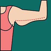 Liposuction of arms