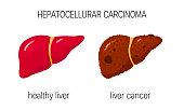 Liver cancer vector concept