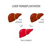 Liver transplantation vector concept