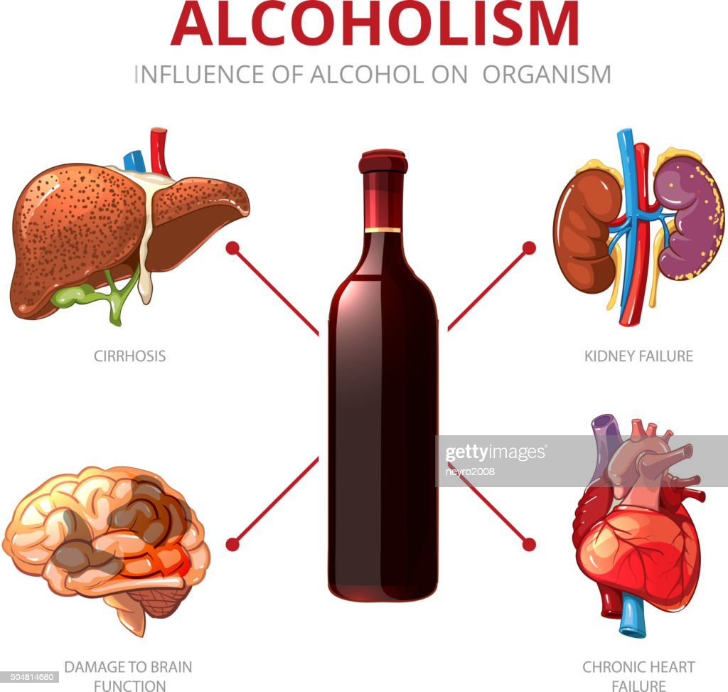 Long-term effects of alcohol. Alcoholism vector infographic
