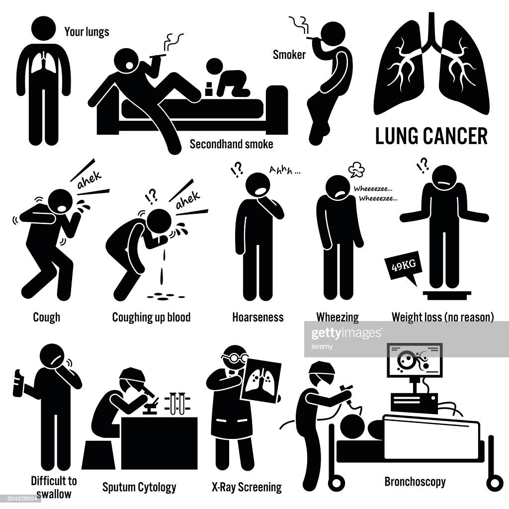 Lung Cancer Illustrations