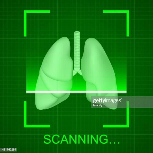 ilustrações, clipart, desenhos animados e ícones de análise de pulmão - raio x