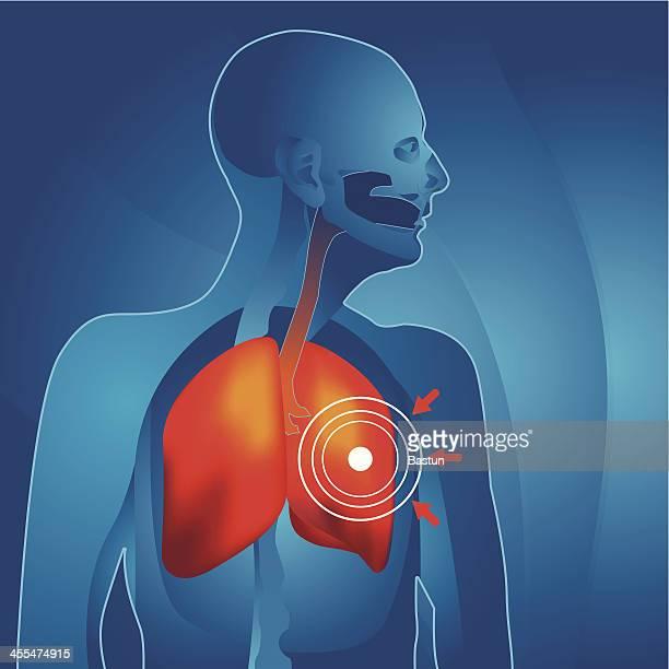 der lunge - cancer illness stock-grafiken, -clipart, -cartoons und -symbole