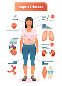 Lupus disease vector illustration. Labeled diagram with sickness symptoms.