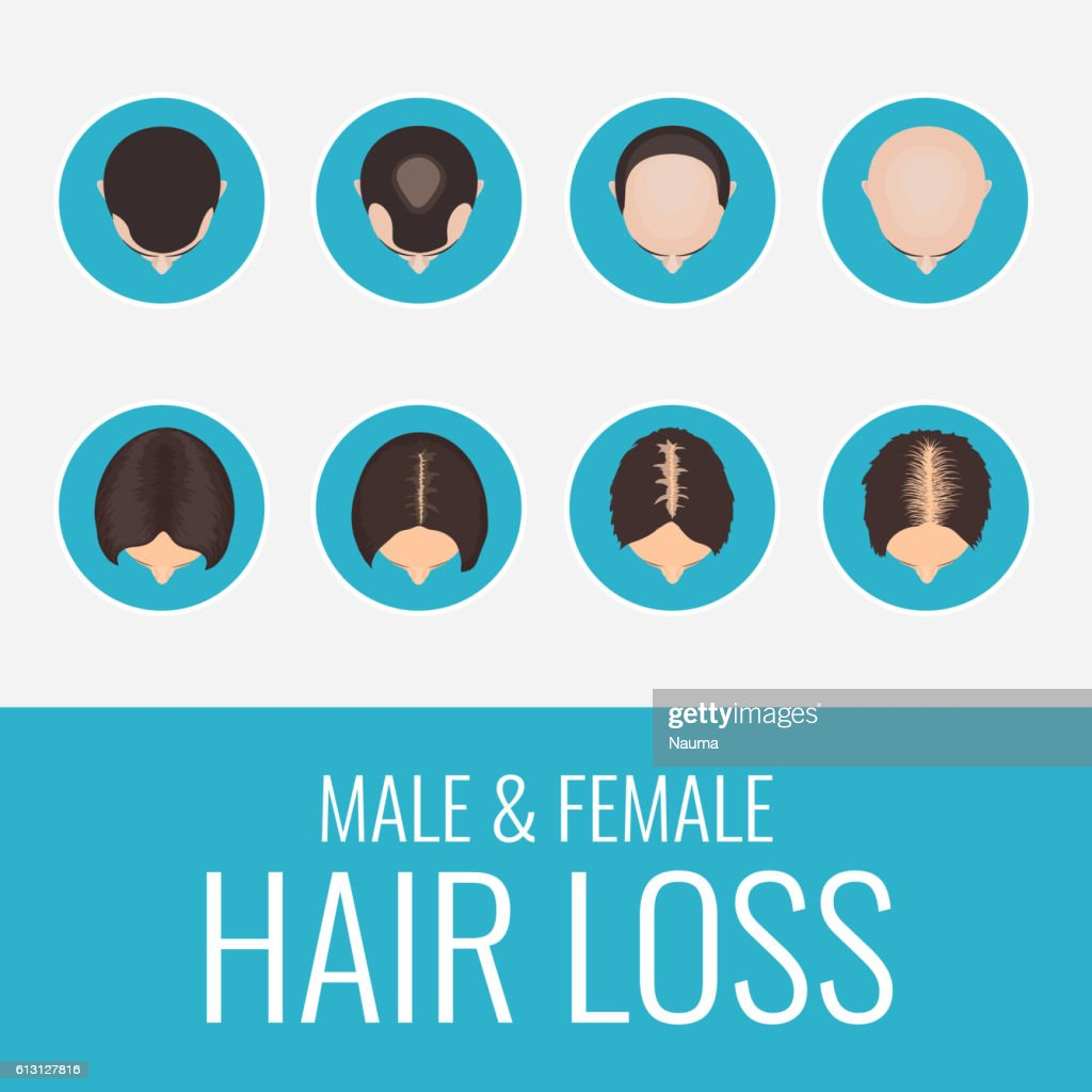 Male and female hair loss set