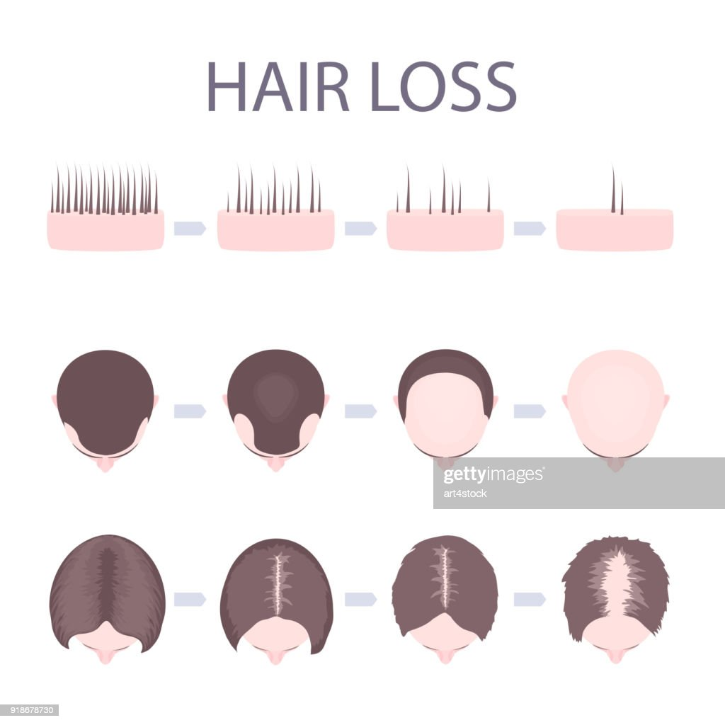 Male and female hair loss