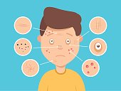 Male facial skin problems vector illustration. Acne and dark spots, wrinkles and circles under the eyes for cosmetics