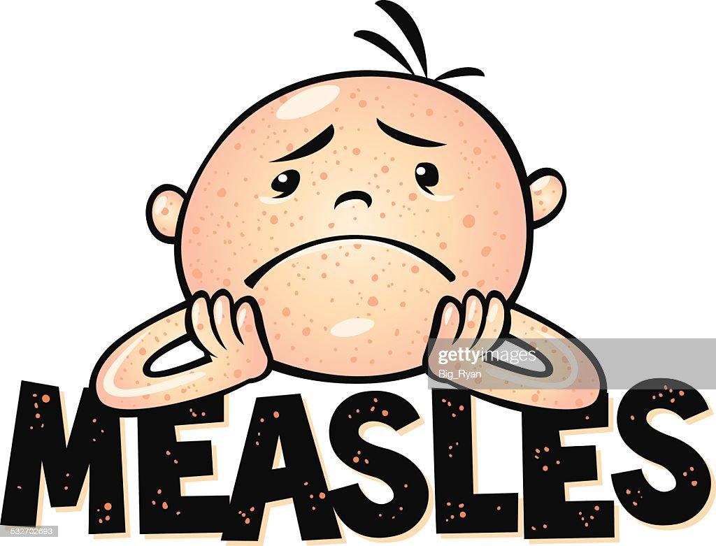 measles : stock illustration