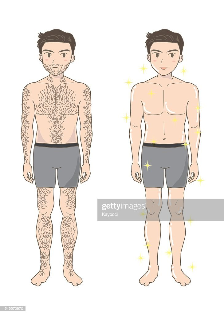 Men's beauty depilation A  (before and after)