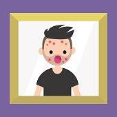 Mirror reflection of a shocked bearded man. Dermatological problems. Acne / flat editable vector illustration, clip art