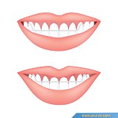 mouth and healthy teeth with removable retainer
