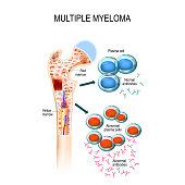 Multiple myeloma is a cancer of the bone marrow.