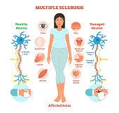 Multiple sclerosis anatomical vector illustration diagram, medical scheme.