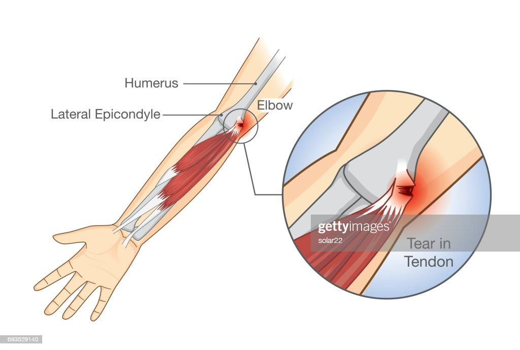 Muscle injury and tear in tendon at elbow area.