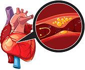 Myocardial infarction vector