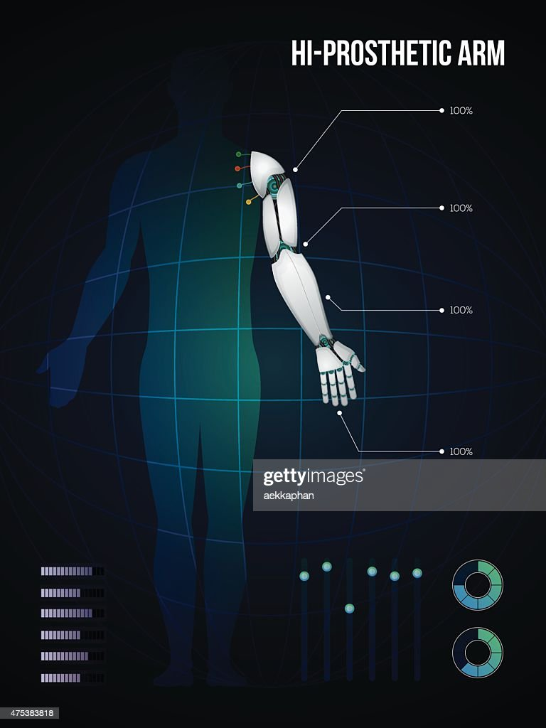 new technology of  hi-prosthetic arm, vector