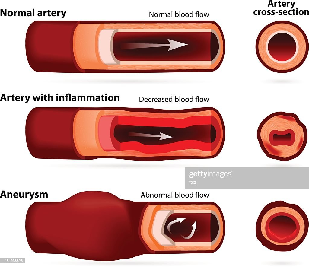 Normal artery, inflamed or narrowed artery and artery with an aneurysm