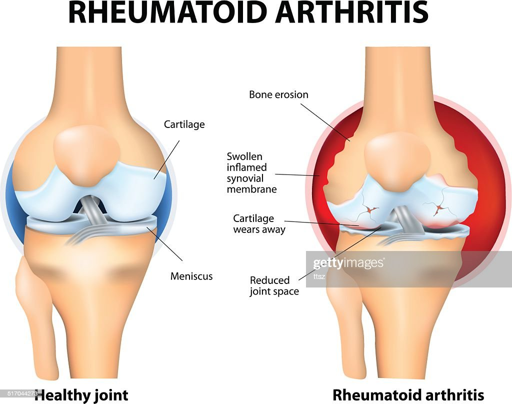 Normal Joint and Rheumatoid Arthritis
