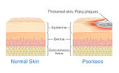 Normal skin layer and skin when plaque psoriasis signs and symptoms appear.