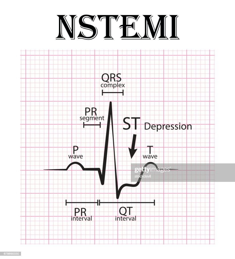 ECG of non ST elevation myocardial infarction (NSTEMI) and detail of ECG ( P wave , PR segment , PR interval , QRS complex , QT interval, ST depress , T wave) Acute coronary syndrome , angina pectoris