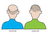 Old and young man. Hair lose and baldness concept.