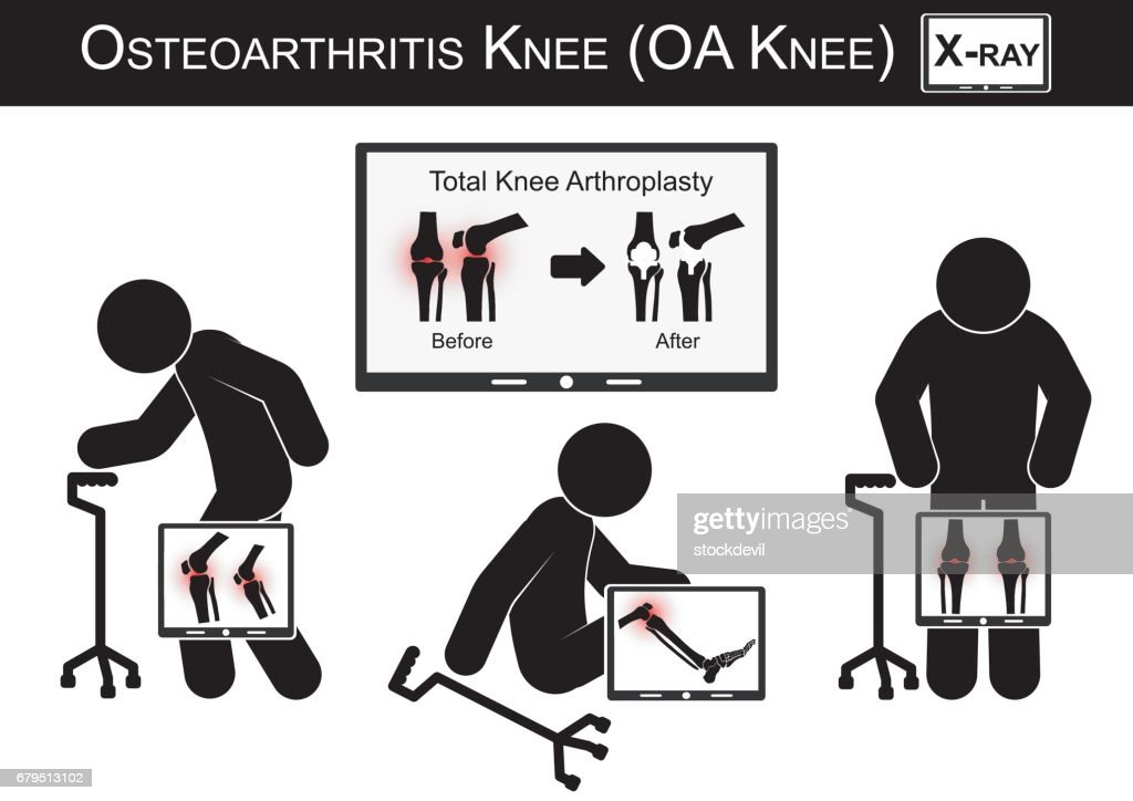 Old man pain at his knee , Monitor show image of Total knee arthroplasty ( before and after surgical treatment ) Osteoarthritis knee vector ( flat design ) ( Health care concept )