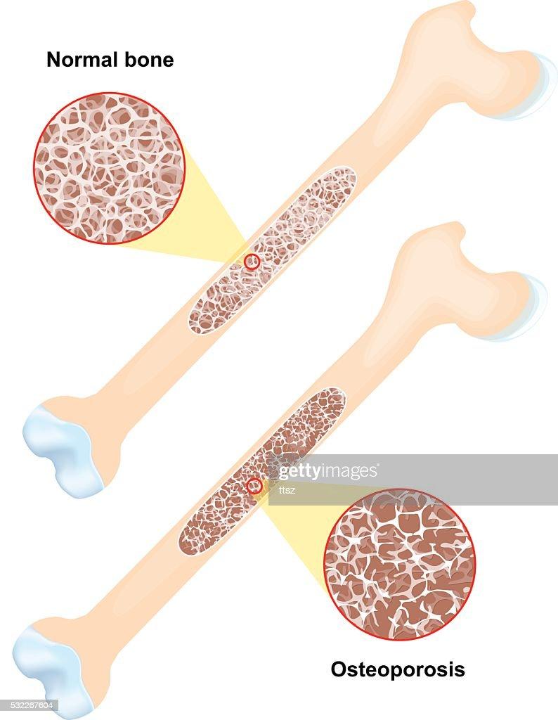 Osteoporosis. disease of bones