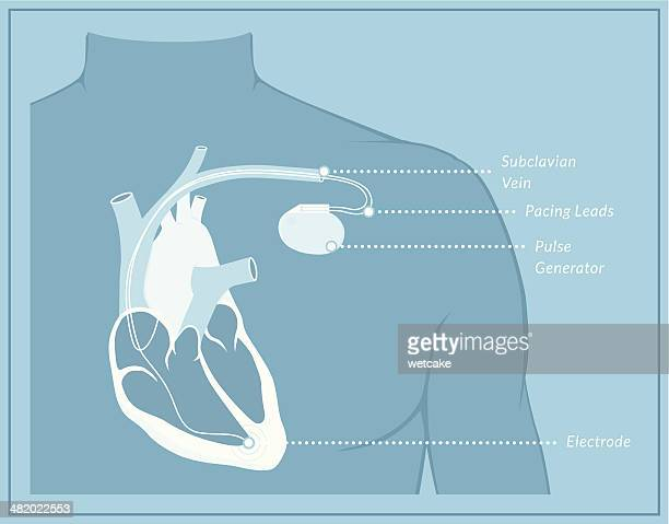 pacemaker blueprint - chest torso stock illustrations, clip art, cartoons, & icons