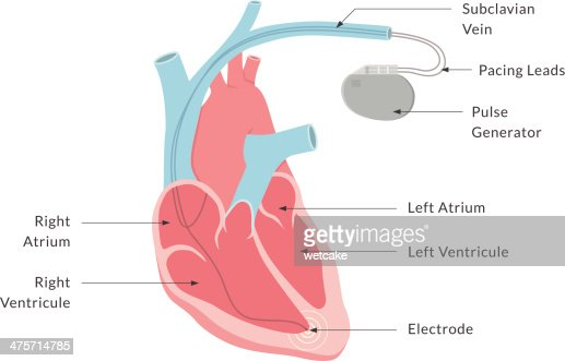 Pacemaker With Labels Vector Art