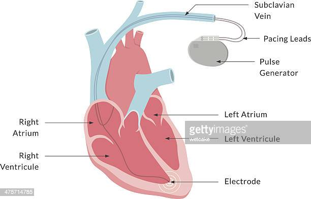 pacemaker with labels - physiology stock illustrations