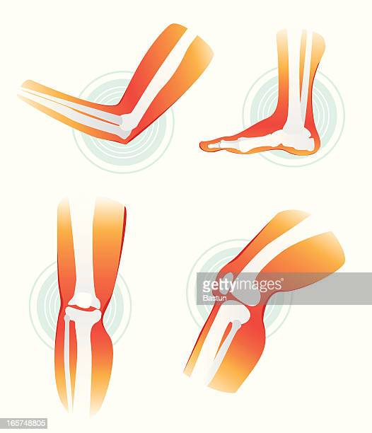 pain in joints - physical therapy stock illustrations, clip art, cartoons, & icons