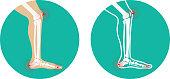 Pain in legs. knee pain, heel pain.