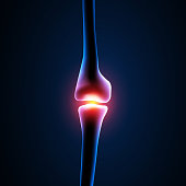 Pain in the knee area
