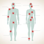 Pain infographic. Human silhouette of man and woman body with migraine and belly hurt painful symbols vector