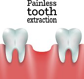 Painless Tooth extraction