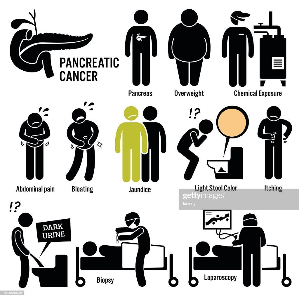 Pancreatic Pancreas Cancer Illustrations