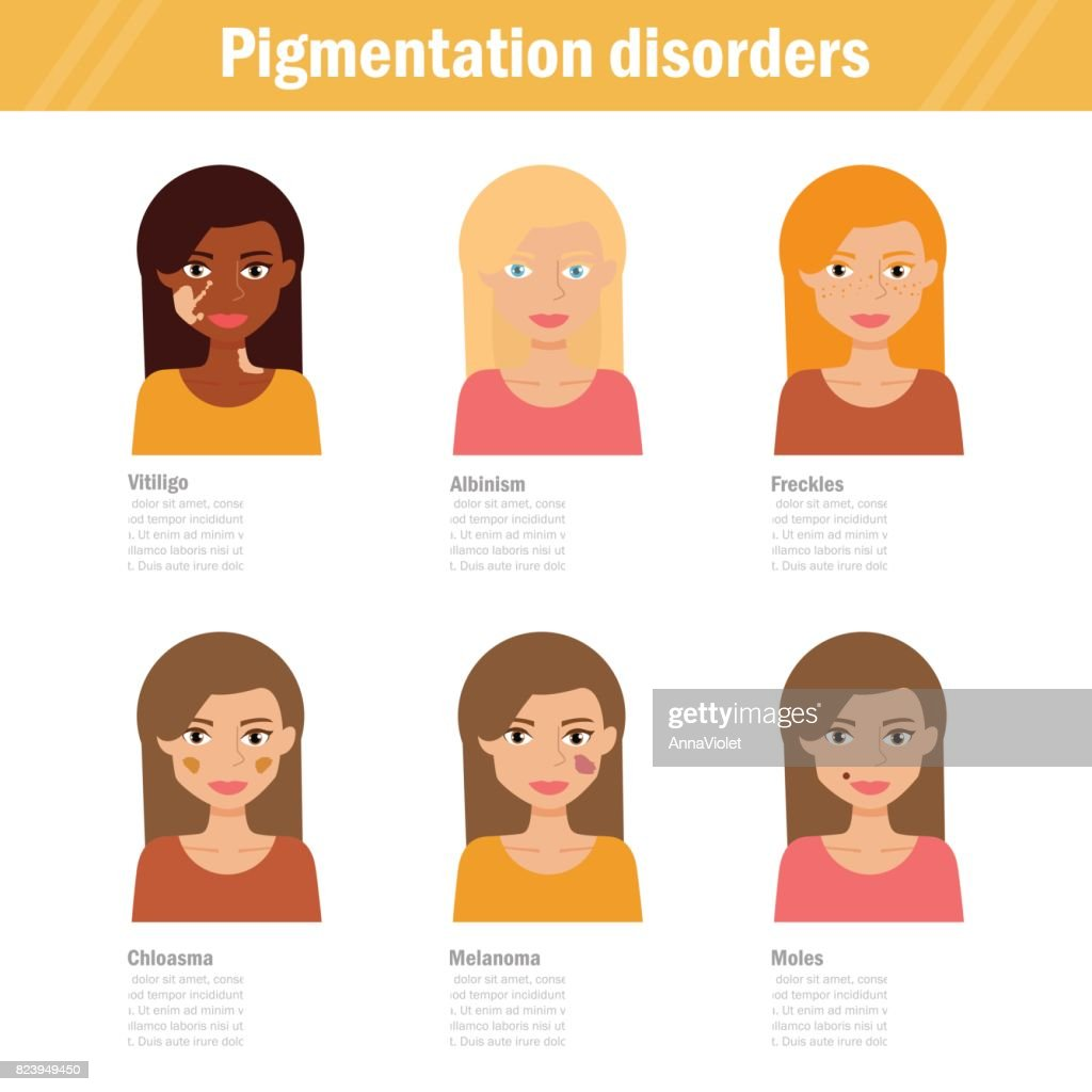 Pigmentation disorders. Isolated