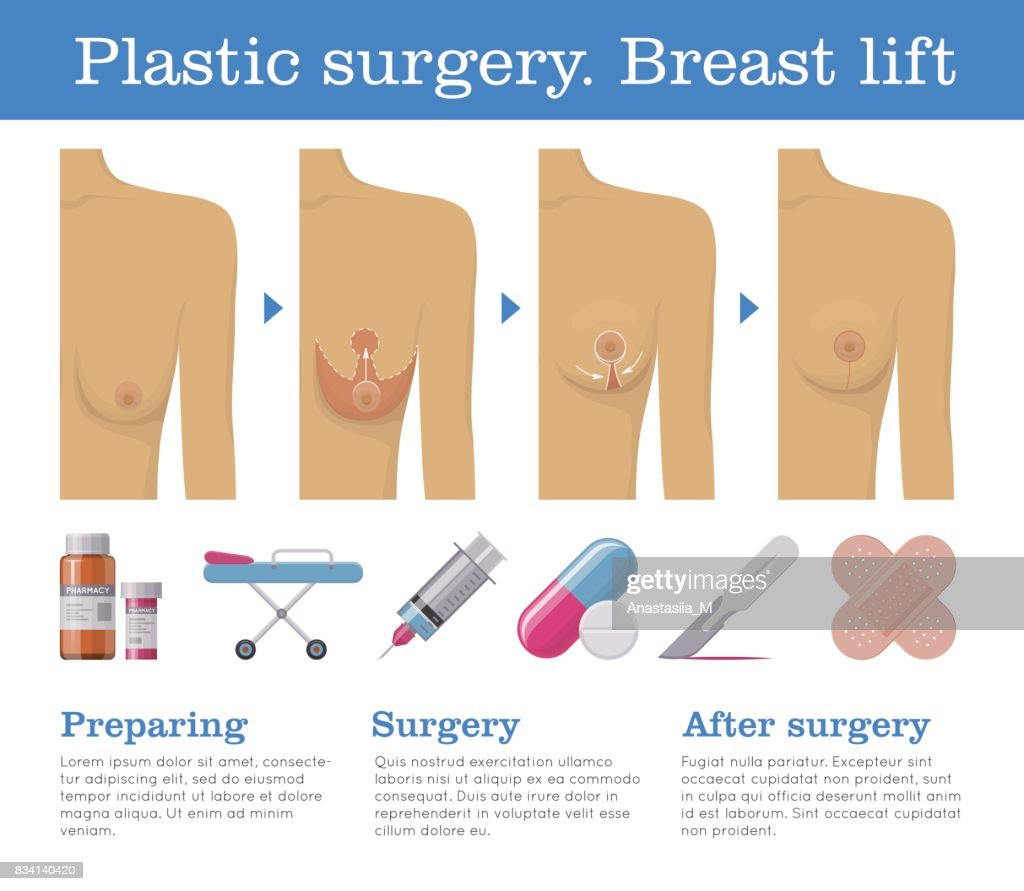 Plastic surgery breast lift