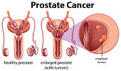 Prostate Cancer on White Background