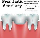 Prosthetic dentistry 1
