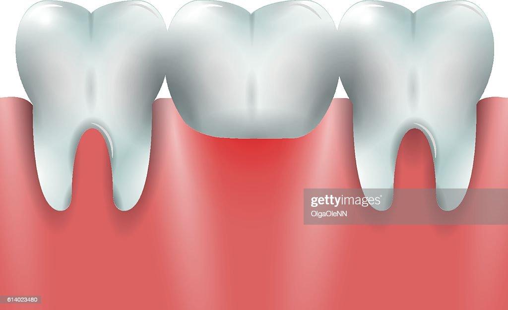 Prosthetic dentistry 2